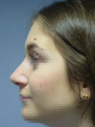 Nose reshaping (rhinoplasty) after