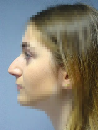 Nose reshaping (rhinoplasty) before