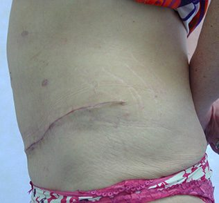 Tummy tuck (abdominoplasty) after