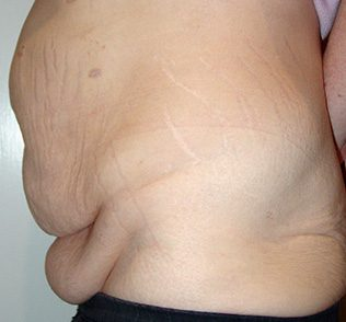 Tummy tuck (abdominoplasty) before