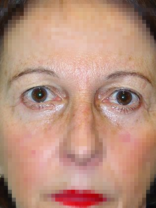 Eyelid bag correction (blepharoplasty) after