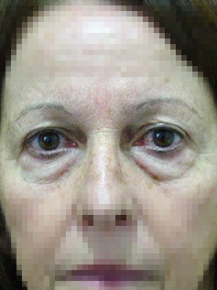 Eyelid bag correction (blepharoplasty) before
